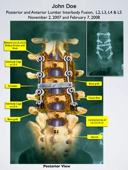 Interbody Lumbar Fusion
