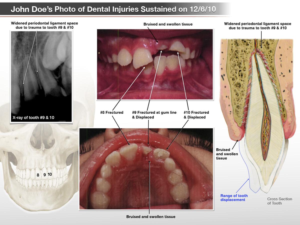 Dental Medical Illustration