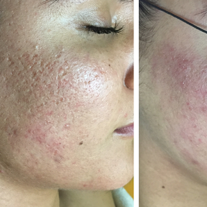 Micro-Needling for Acne Scar