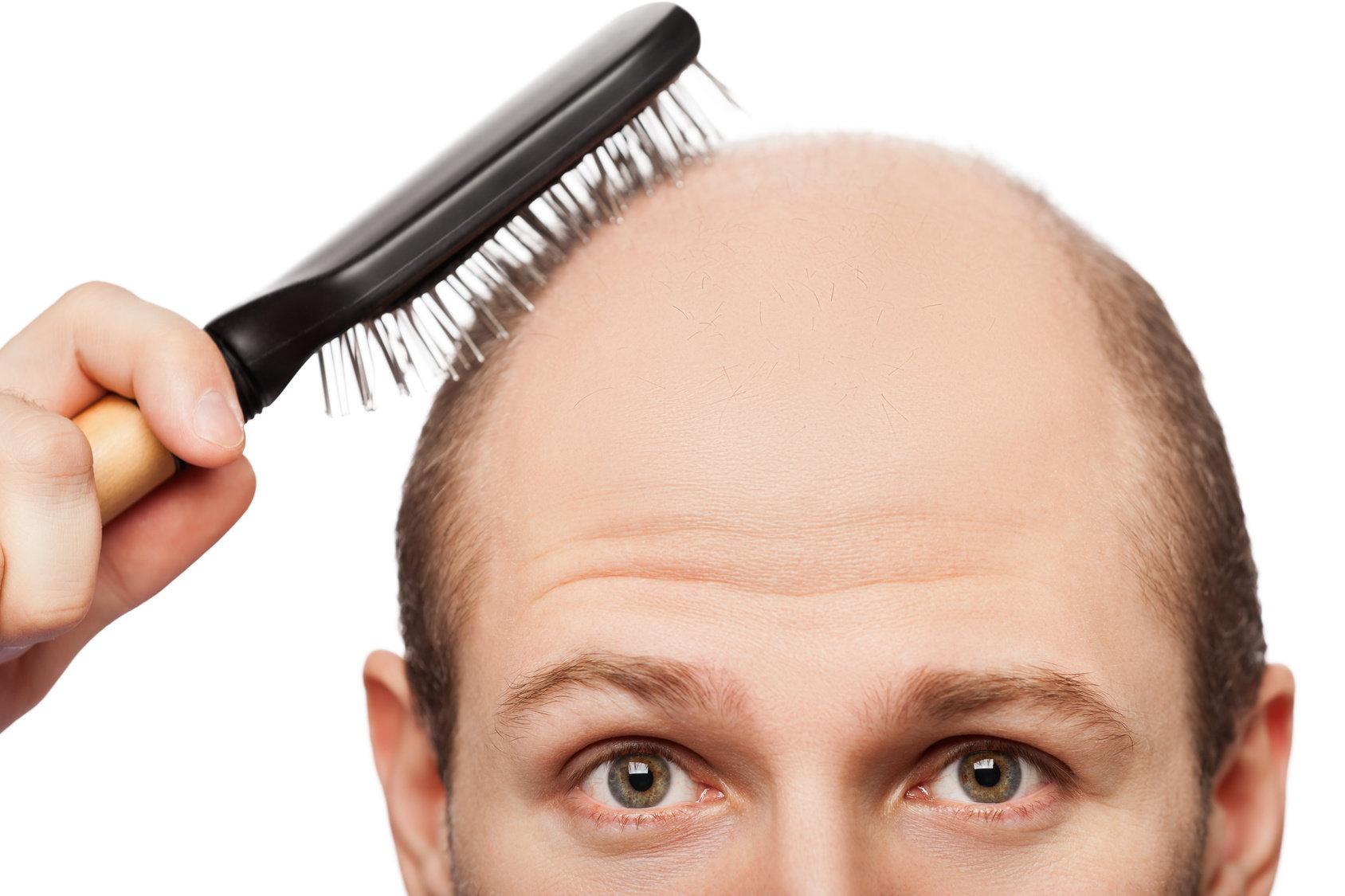 Hair Growth Program
