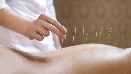 akupunktura-0518.jpeg