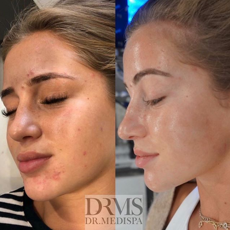 skin doctor to the stars shares how to treat adult acne