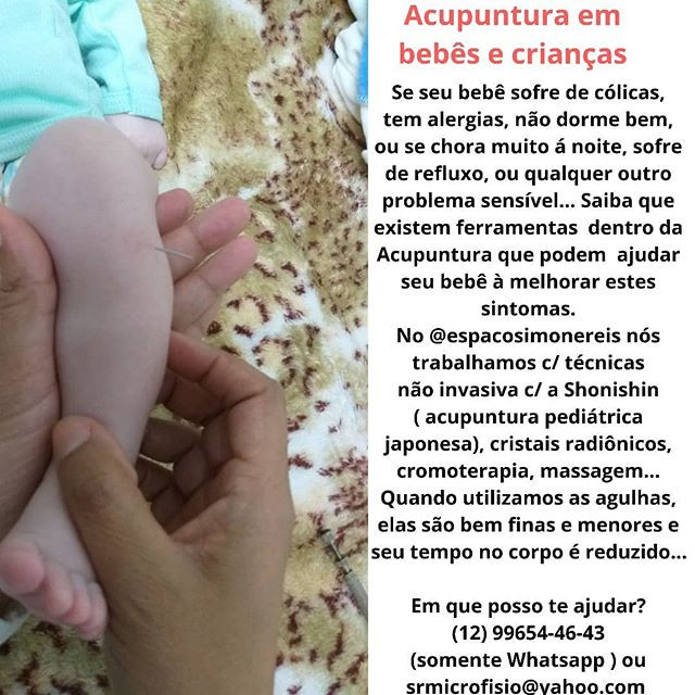 Seu bebê merece ser cuidado c/ a acupuntura