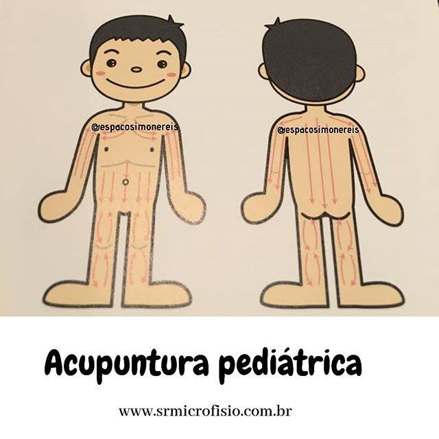 Acupuntura em Pediatria