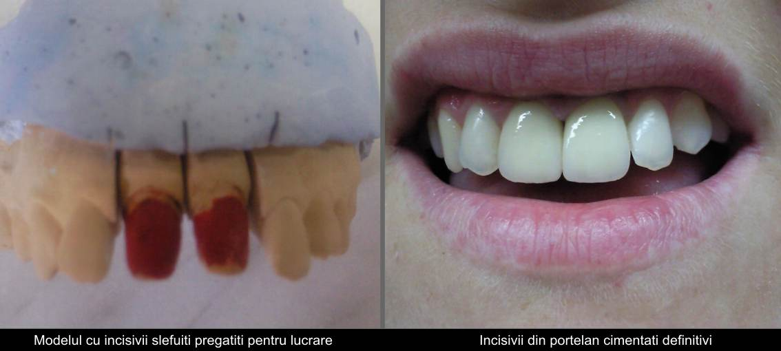 Central porcelain incisors
