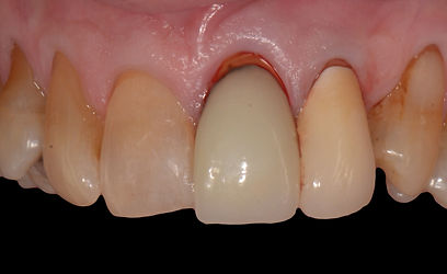 Implant Dental crown for failed root canal Milton, Implant Dental crown for failed root canal Ancaster, Implant Dental crown for failed root canal Waterdown, Implant Dental crown for failed root canal Vaughn, Implant Dental crown for failed root canal Kleinburg, Implant Dental crown for failed root canal Markham