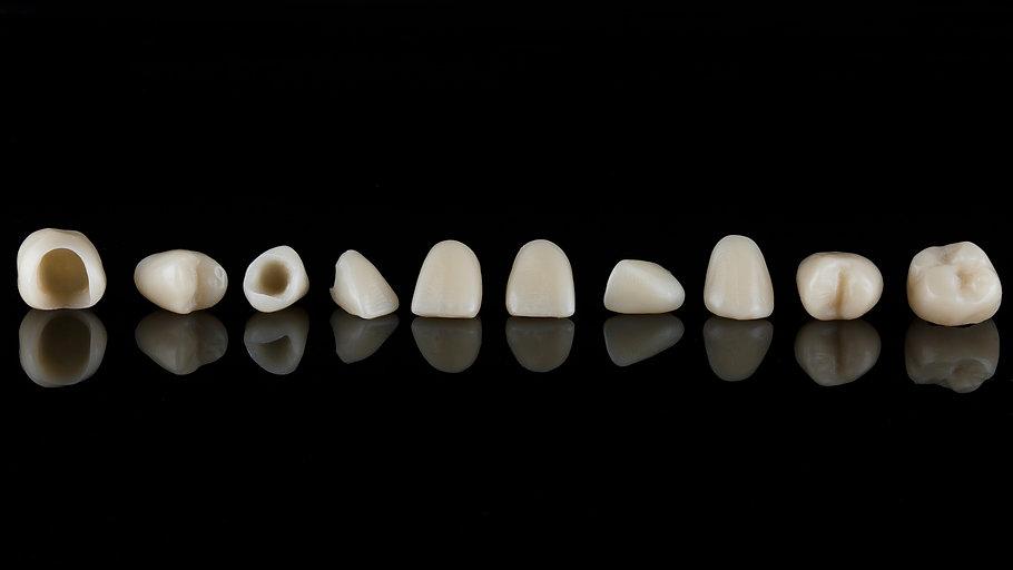 porcelain dental crowns milton, porcelain dental crowns Toronto, porcelain dental crowns Oakville, porcelain dental crowns Burlington, porcelain dental crowns Ancaster, porcelain dental crowns Mississauga, porcelain dental crowns Brampton