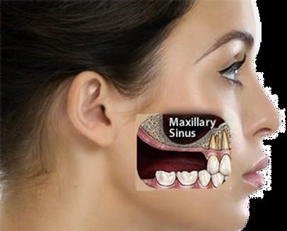 What is a sinus lift oakville, milton, burlington, mississauga