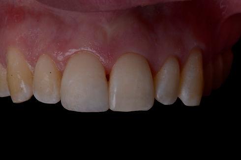 White filling for broken front tooth in Milton, Oakville, Burlington, Mississauga, Toronto, Brampton, Hamilton, Waterdown, Brantford