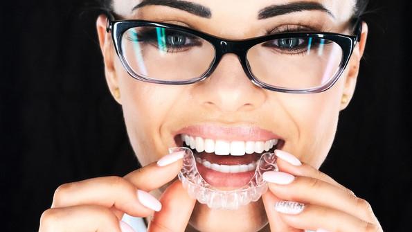 Invisalign for Adults          Smile Tru        Clear Aligner