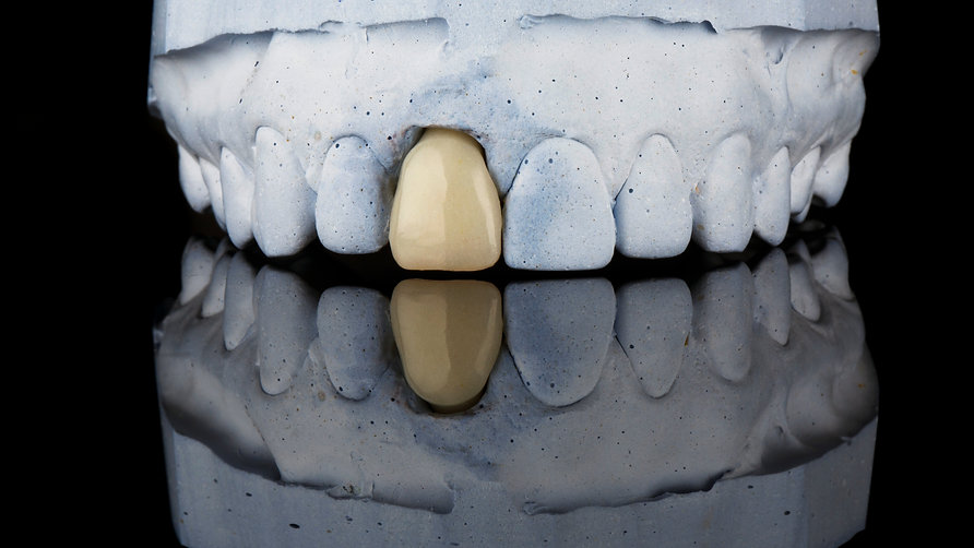 Cosmetic dentist for front tooth crown