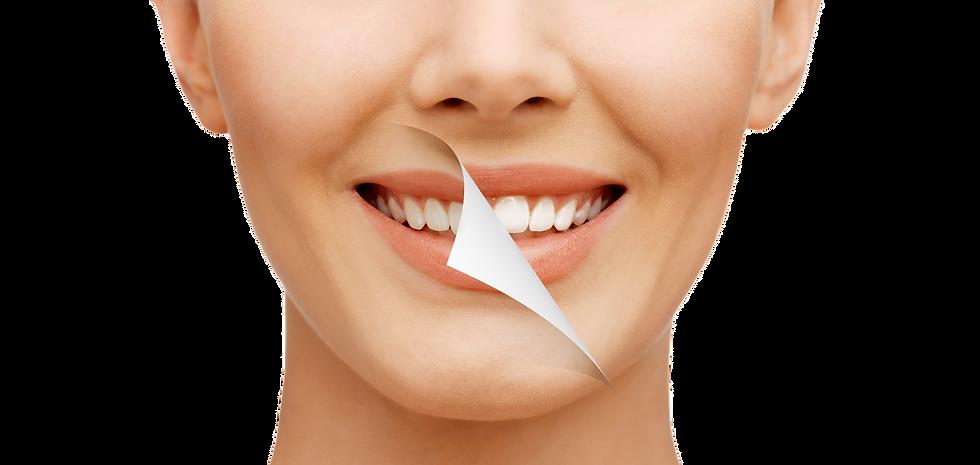 Teeth whitening smile makeover milton,
