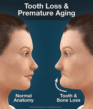 Tooth loss causes premature aging.  Implant specialist in Oakville. Implant specialist in Milton, Implant specialist in Burlington, Implant specialist in Mississauga, Implant specialist in kitchner,