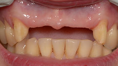 missing front teeth to be replaced with a dental bridge by milton cosmetic dentist in milton