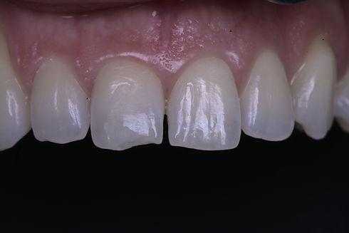 Dental bonding tooth filling for chipped front tooth in Milton, Oakville, Burlington, Mississauga, Toronto, Brampton, Hamilton, Waterdown, Brantford