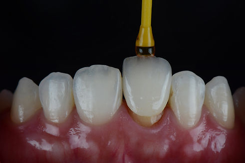 best cosmetic dentist Toronto, best cosmetic dentist Milton, best cosmetic dentist Oakville, best cosmetic dentist Burlington, best cosmetic dentist Mississauga, best cosmetic dentist Hamilton,