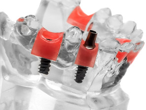 Dental Implant after Tooth Removal