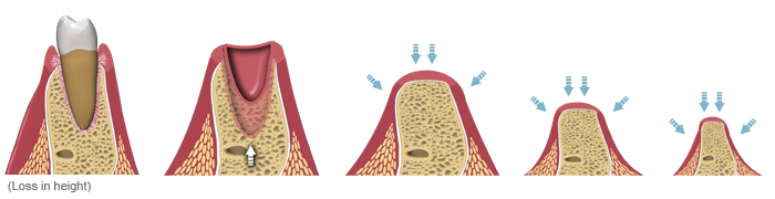 what happens when a tooth is extracted to the bone, the bone shrinks and a bone graft will prevent this. Implant specialist milton