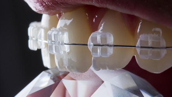 Clear Braces     Porcelain Braces     Ceramic Braces