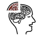 Concussion Symptoms Treatment Cognitive mental impairment Amnesia  Forgetfulness  Unable to focus or concentrate  Brain fog / Feelingin a Fog  Mental exhaustion  Slowed Reaction Times  Difficulty Concentrating  Difficulty Remembering  Confusion  Feeling dazed