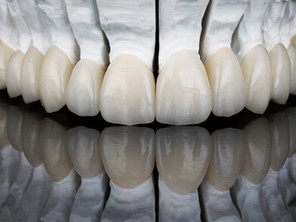 Improving Your Smile with Porcelain Veneers