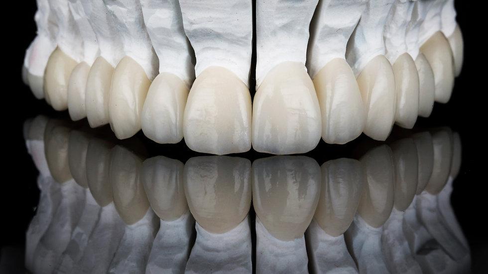 Porcelain dental veneers for the upper jaw