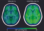 Sleep Apnea effect on the brain - reduces blood flow and oxygen