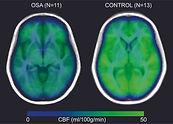 Sleep Apnea effect on the brain - reduces blood flow and oxygen