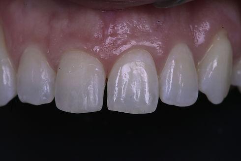 Dental bonding tooth filling for broken front tooth in Milton, Oakville, Burlington, Mississauga, Toronto, Brampton, Hamilton, Waterdown, Brantford