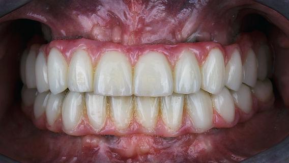 all on 4 to replace missing teeth milton, oakville, burlington, toronto,ancaster, waterdown, georgetown, halton