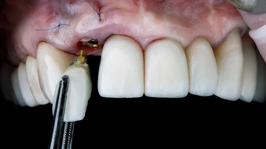 dental implants milton, dental bridge oakville, dental bridge burlington, dental bridge toronto, dental bridge georgetown