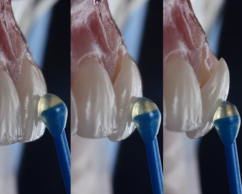 A single veneer can fix a single damaged or misaligned tooth or multiple veneers can be used to create a complete smile makeover.