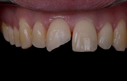 White filling for chipped front tooth in Milton, Oakville, Burlington, Mississauga, Toronto, Brampton, Hamilton, Waterdown, Brantford