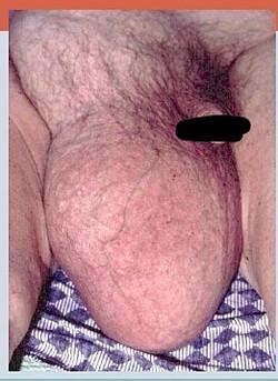 Large Inguinal-scrotal Hernia
