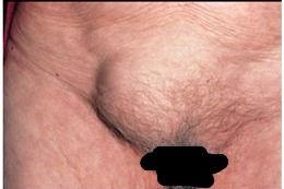 Inguinal hernia in female