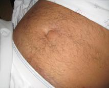 Umbilical hernia. Miami Hernia Center