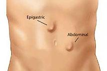 Epigastric hernia price