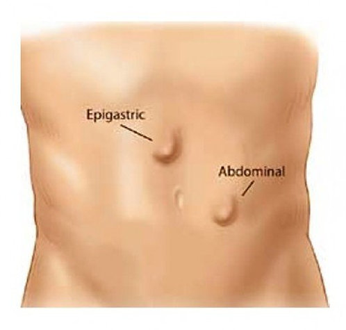 Epigastric or Ventral Hernia