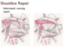 inguinal-hernia-repair-30-638.jpg