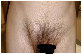 Inguinal hernia in male. Miami Hernia