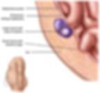 strangulated hernia