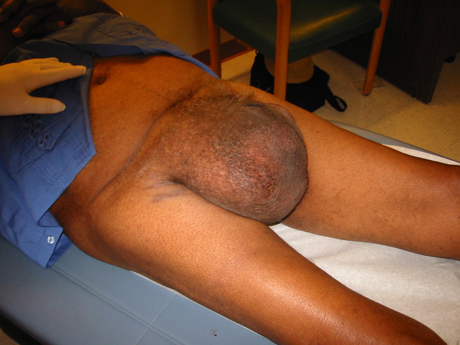 Large Scrotal Inguinal Hernia