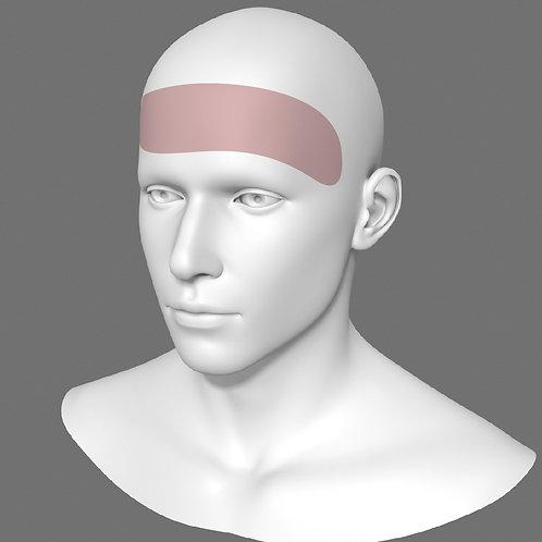 Depilação a Laser Testa Masculino - Pacote 10 sessões