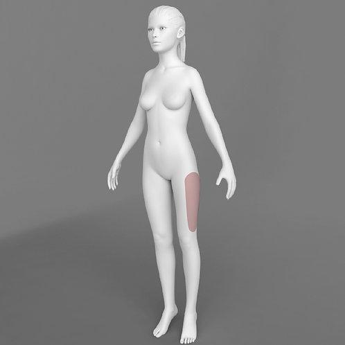 Depilação a Laser Coxa Externa Feminino - Pacote 10 sessões