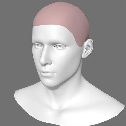 Depilação a Laser Cabeça Masculino - Pacote 10 sessões
