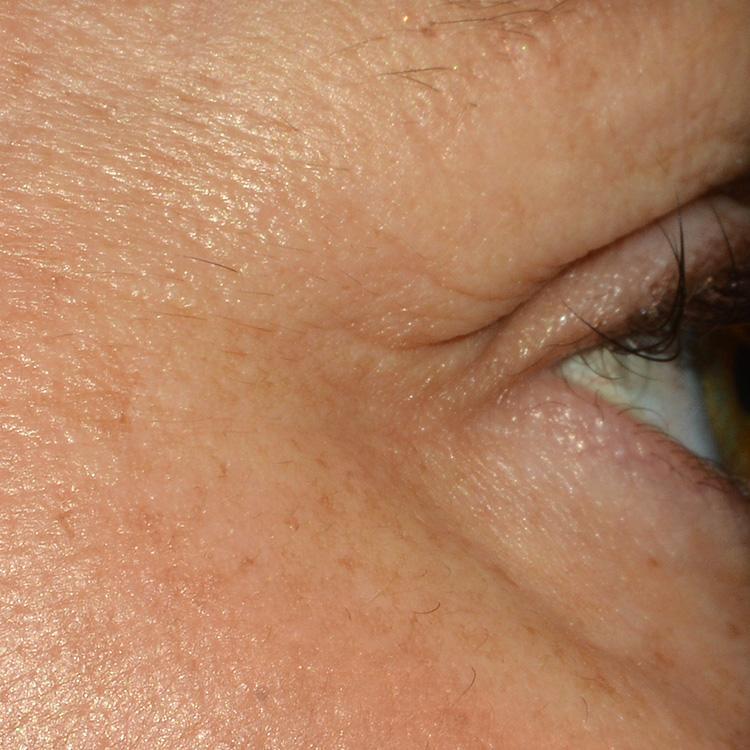 ba_eye_2-b