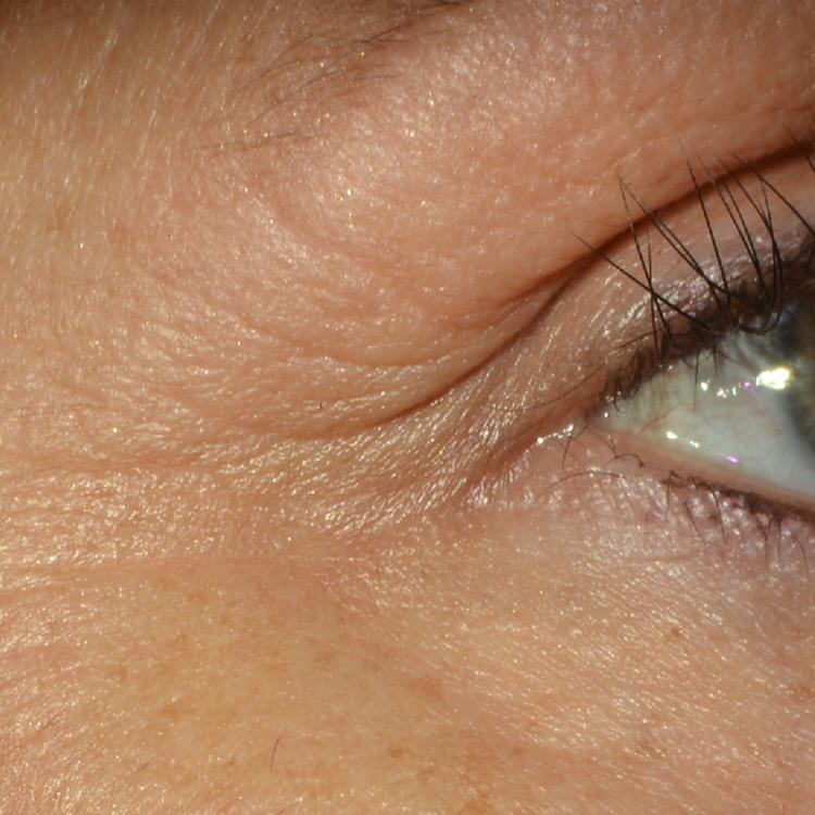 ba_eye_2-a