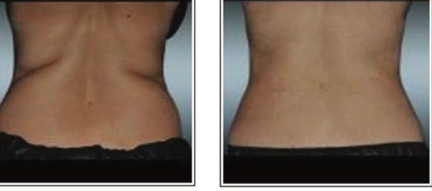 before and after body sculpting eliminate back fat