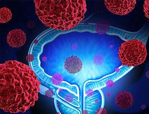 Metatsic Prostate Cancer.jpg