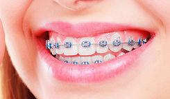 ortodoncia_brackets-metal-1170x688.jpg